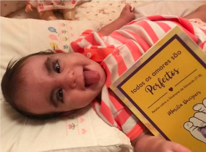 Bebê com Síndrome de Edwards está deitado com um livro próximo e olha sorridente para a câmera.