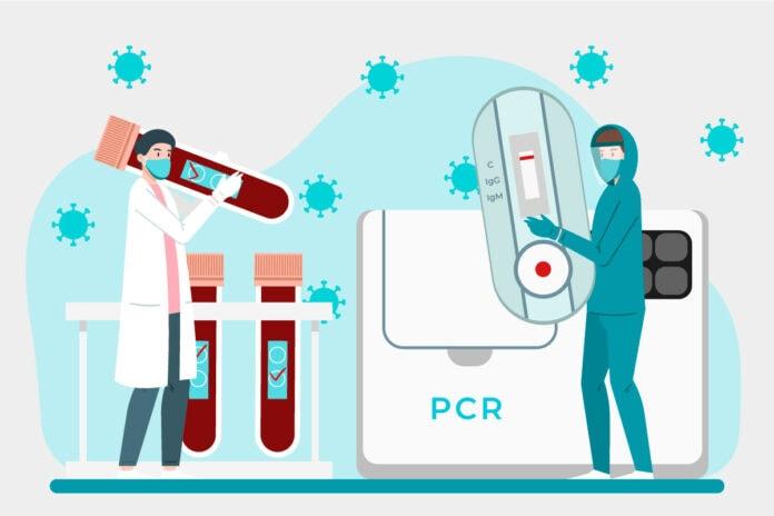 Cientistas carregando teste de covid de sangue, pcr e teste rápido