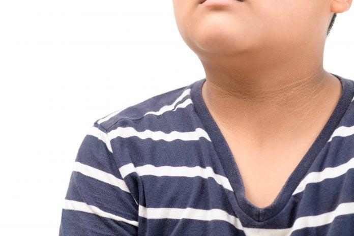Diabetes não é doença só de adulto: número de casos entre jovens cresce durante a pandemia; menino com mancha marrom no pescoço
